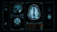 Brain MRI Scan. Blue. Medical Background. Head x-ray. EKG. Loopable. video