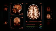 Brain MRI Scan. Top, front and lateral view. Amber. video