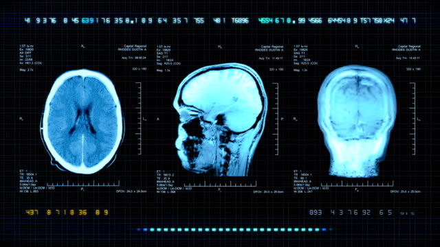Brain MRI Scan video