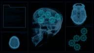 Brain MRI Scan with Gears video
