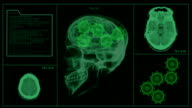 Brain MRI Scan with Gears video