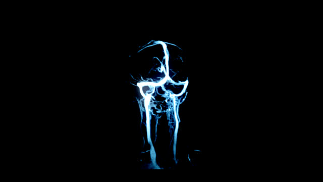 Brain MRI scan-a diagnostic method video