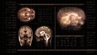 Brain MRI video