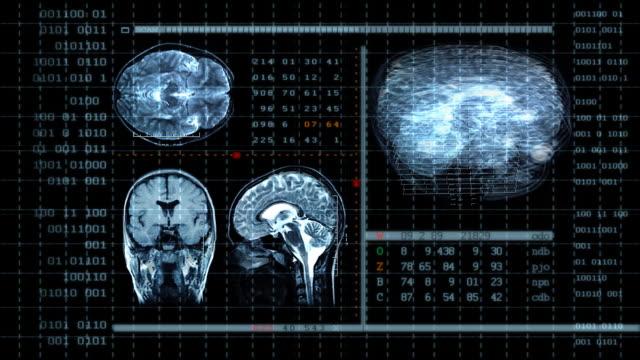 Brain MRT scan video