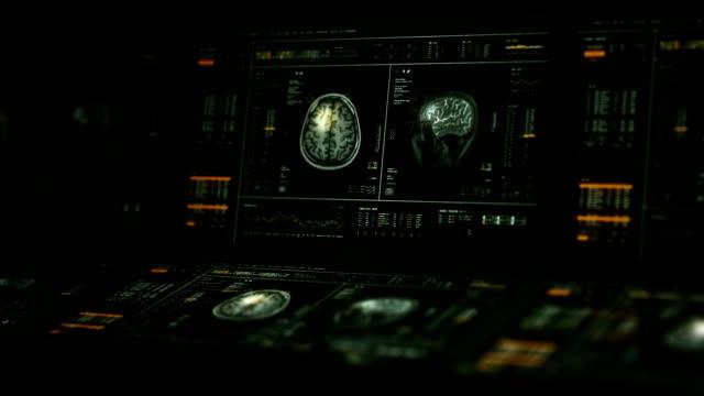 MRI Brain Scan Computers video