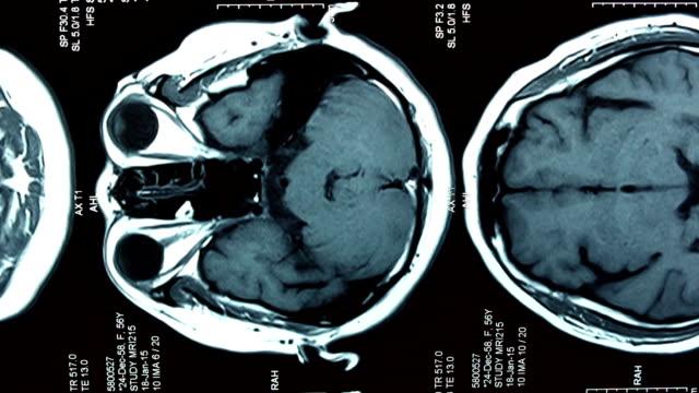 MRI brain scan, Dolly shot video
