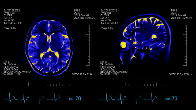 MRI brain scan futuristic display blue and orange with heartbeat rate monitor video