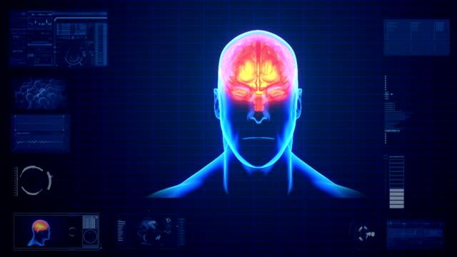 Brain Scan Monitor video