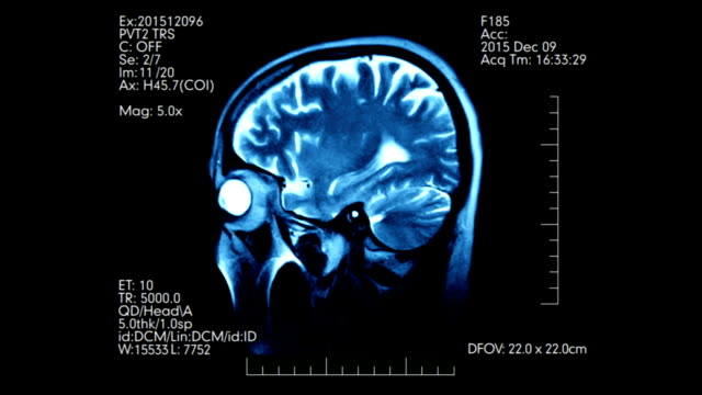 MRI brain scan profile animation with medical data video