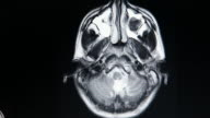MRI brain scan video