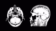 Brain top and lateral cut MRT scan video
