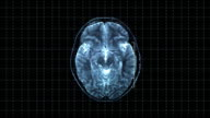 Brain top MRT scan video