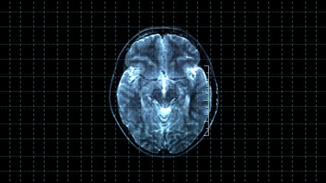 Brain top MRT scan video
