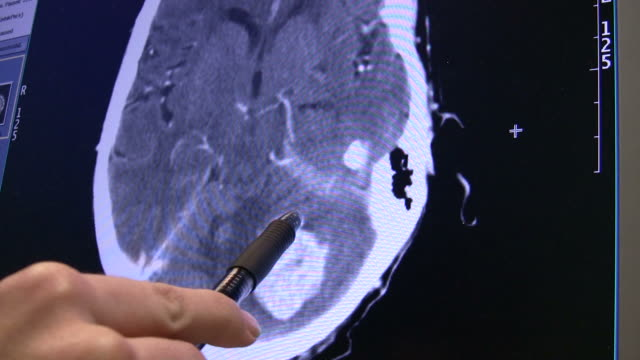 Brain Tumor 2 video