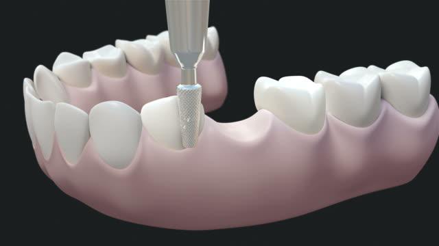 HD: Bridge teeth Dark video