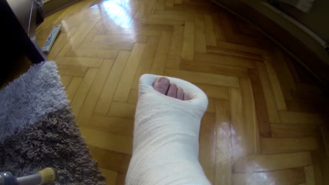 broken leg in a cast video