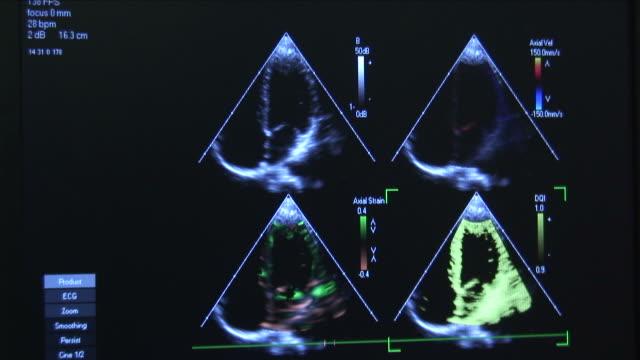 Cardiac Ultrasound 2 video