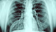 Chest x-ray and gases. video
