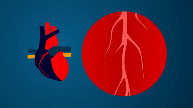 cholesterol animation video