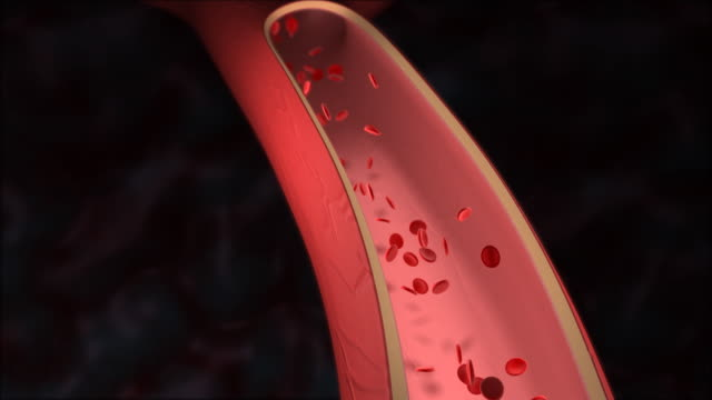 Cholesterol clogging artery video