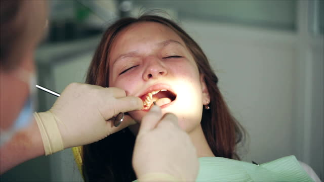 Cleaning of teeth in dental cabinet. Dentist washing teeth video