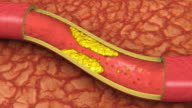 Clogged Artery Animation (HD) video