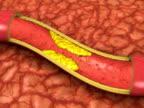 Clogged Artery Animation (NTSC, PAL) video