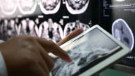 Close up of Doctor Analysis skull brain X-ray scan on digital tablet, Healthcare And Medicine Concept video