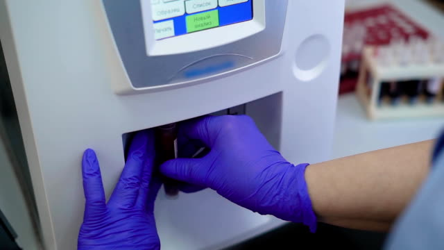 Close up shot of a doctor's hand in rubber gloves, who conducts a general urine analysis on a modern medical device using a test strip video