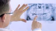 Closeup of dentist looking at dental x-ray plate video