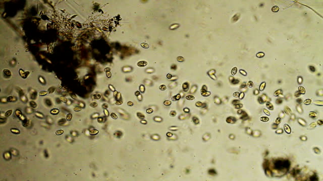 Colony of microorganisms video