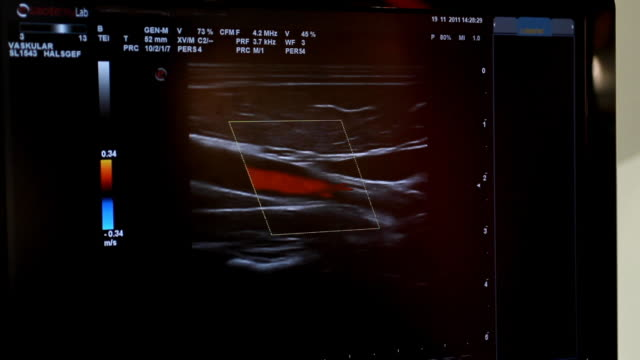 Color doppler (HD) video
