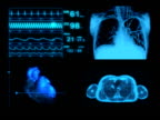 Computer Animation EKG Medical Display Monitor video