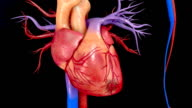 Coronary artery bypass grafting video