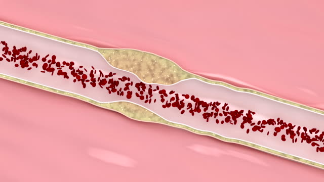 Coronary atherosclerosis disease video