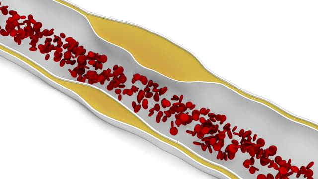 Coronary atherosclerosis - fat cell blocking blood flow video