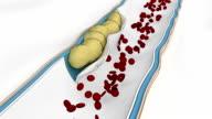 Coronary embolus travels through the circulatory system video