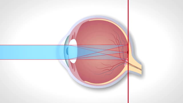 Correction of various eye vision disorders by lens video