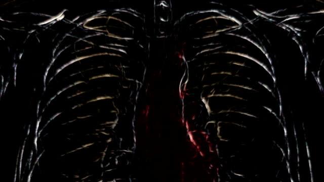 Dark radiograph of irradiated body. video