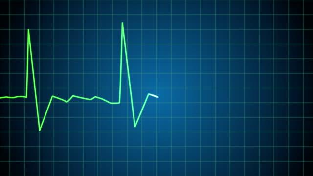 Death: EKG heart monitor goes flatline (4K) video