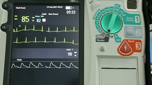 Defibrillation is a treatment video