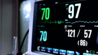 Defibrillator display heart pulse in hospital ICU room,real time. video