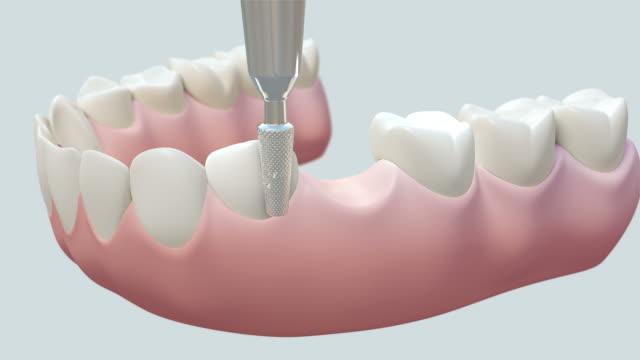 HD: Dental Bridge White video