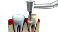 Dental crown installation process video