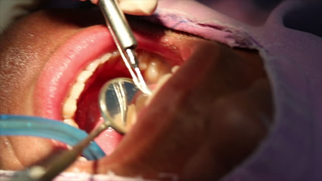 dental implant. video