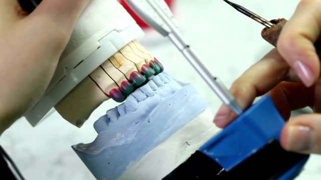 Dental prosthesis video