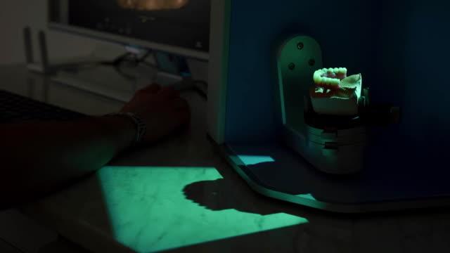 Dental prosthetic restoration. Denturist is making 3D model for sculpted denture with high tech equipment video