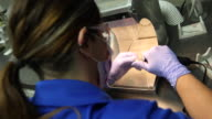 Dental Technician Grinds Tooth Crown video