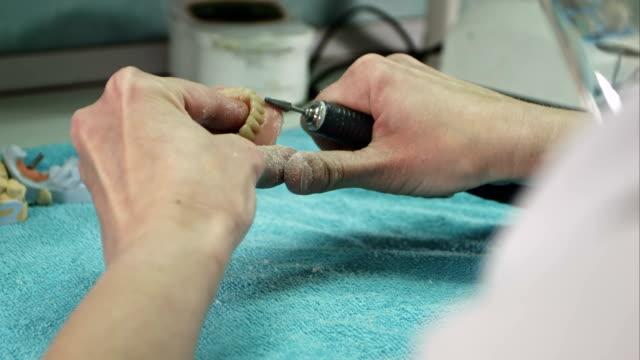 Dental technician making deture prothese video