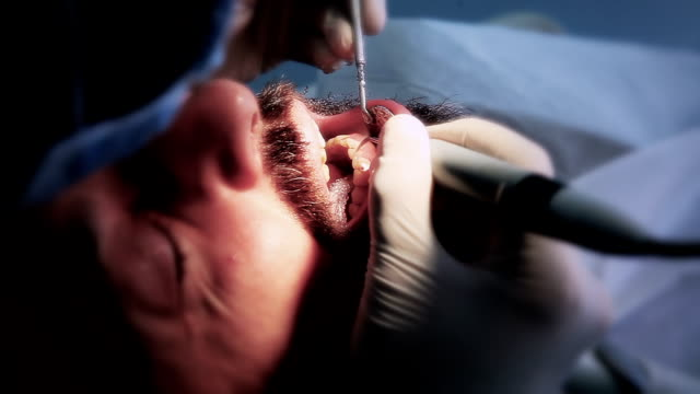 Dental Treatment video